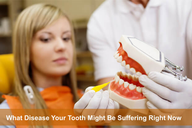 What Disease Your Tooth Might Be Suffering Right Now