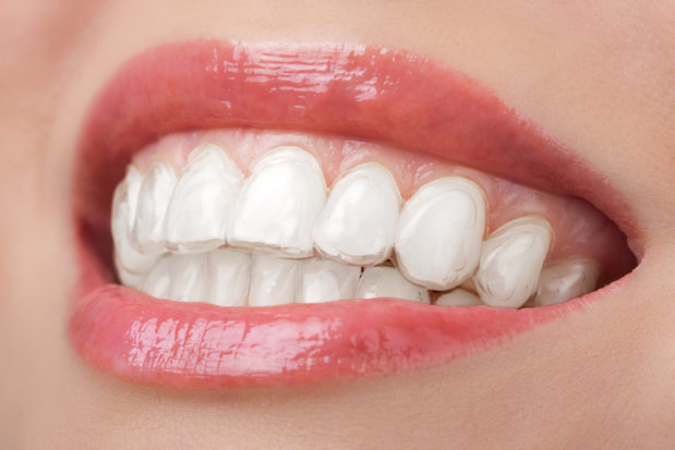 Improve the Whiteness of Your Teeth with These Tips